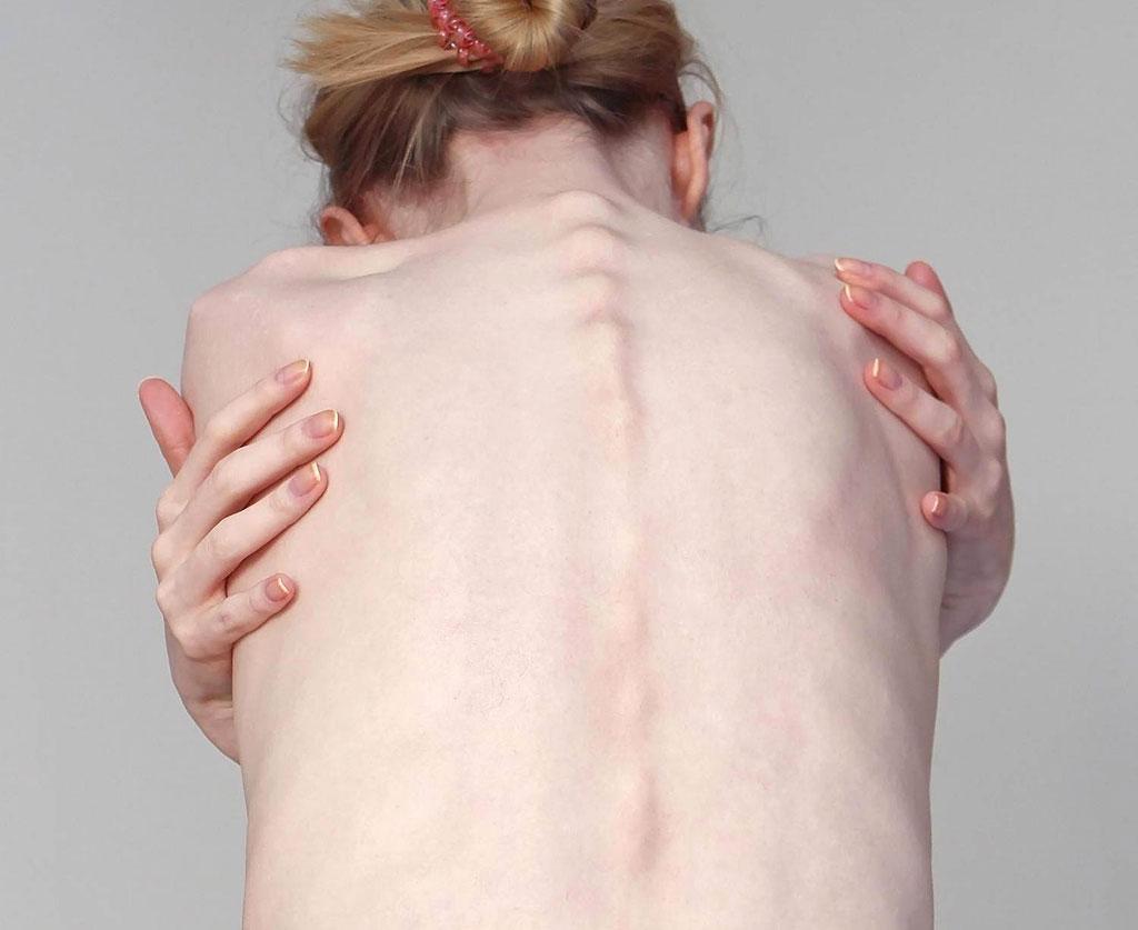 tipica-imagem-de-bonespiration